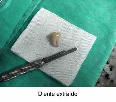 las muelas del juicio - artículos - CLINICA ODONTOLÓGICA Dr. Ignacio ...