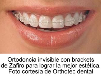 Ortodoncia invisible con brackets de zafiro. Foto cortesía de Orthotec dental